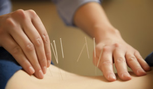 Acupuncture in Smithers, BC